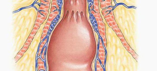 Диагностика и лечение аноректальной невралгии
