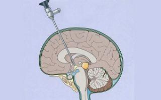 Шунтирование головного мозга как метод лечения гидроцефалии