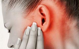 Симптомы ганглионеврита и причины его возникновения