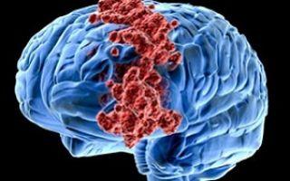 Мультиформная глиобластома головного мозга