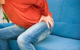 Симптомы защемления тазобедренного нерва