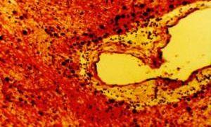Очаговые изменения в белом веществе головного мозга