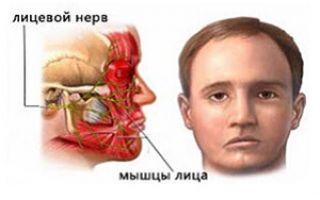 Симптомы защемления лицевого тройничного нерва
