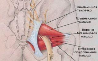 Защемление запирательного нерва