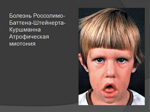 Болезнь Россолимо-Баттена-Штейнерта-Куршманна