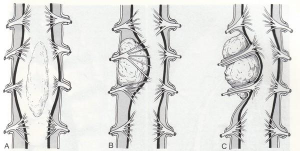 менингиома позвоночника