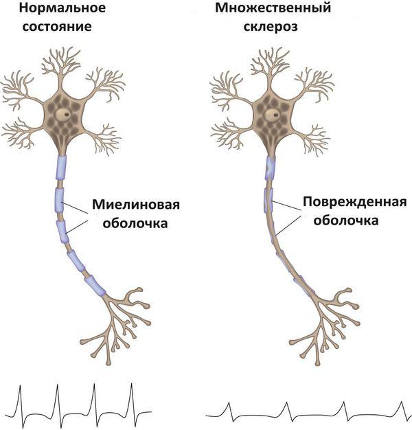 множественный склероз