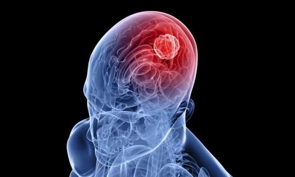 поражение клеток головного мозга