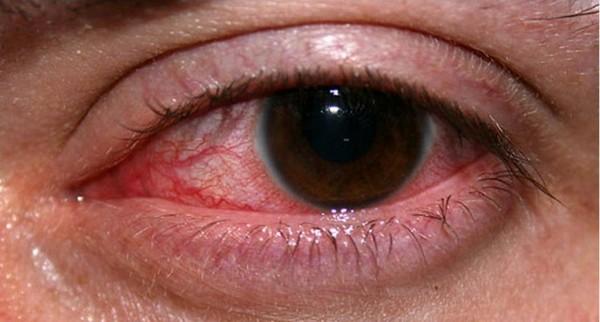 Септический панофтальмит