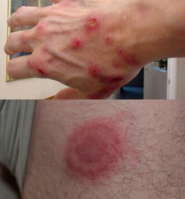 симптомы боррелиоза
