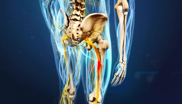 сканирование мрт седалищного нерва