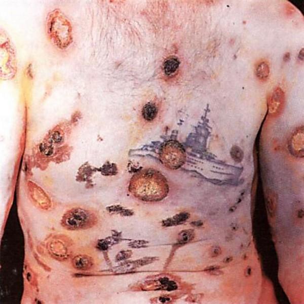 висцералный сифилис
