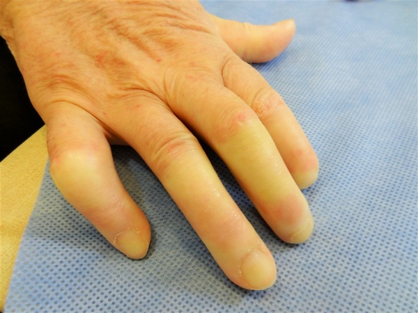 атрофия кистей рук