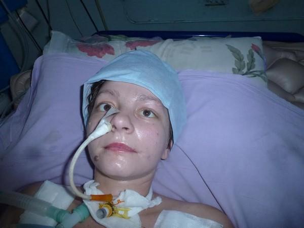 больнгая синдромом Гийена-Барре