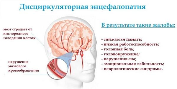 дисциркуляторная энцефалопатия