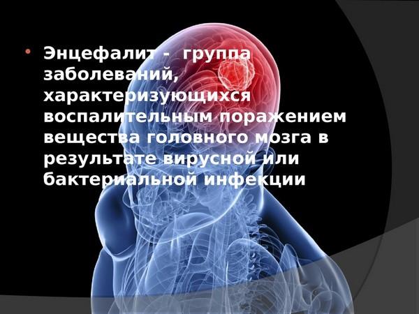 энцефалит