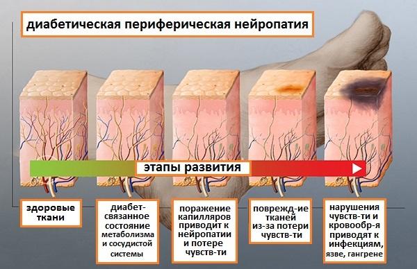 этапы развития