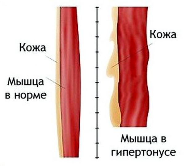 гипертонус мышц
