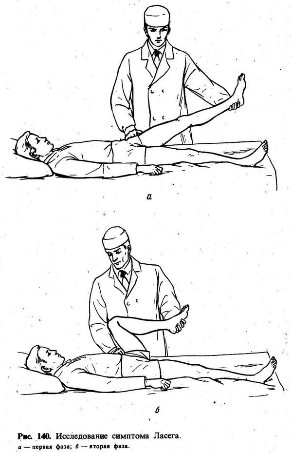 исследования симптома лагеса