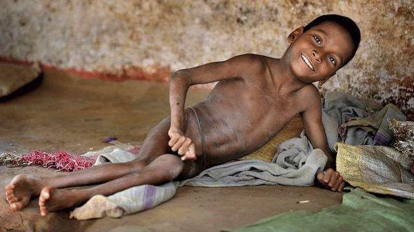мальчик с полиомиелитом