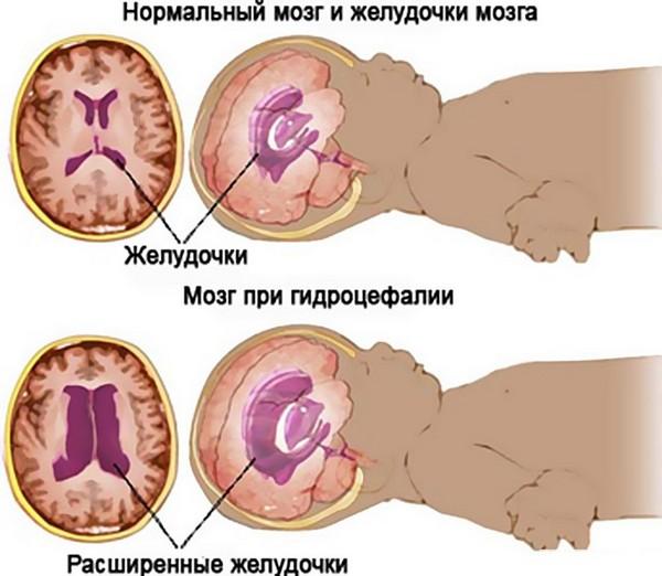 могзг при гидроцефалии