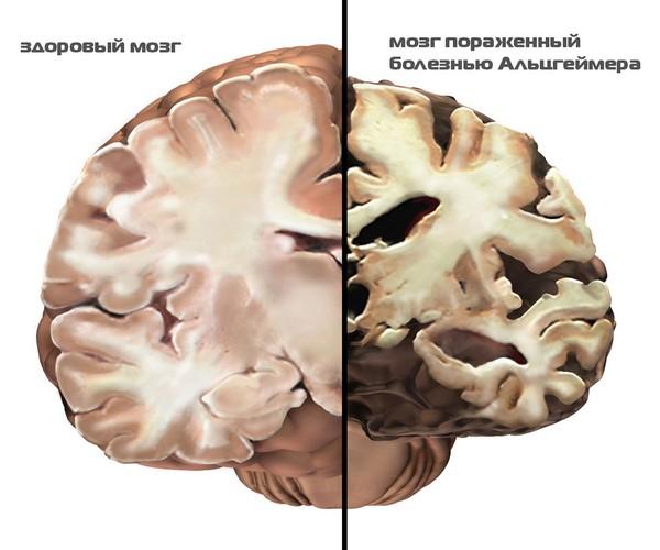 мозг пораженный альцгеймером