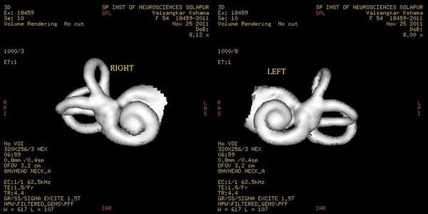 мрт слухового нерва