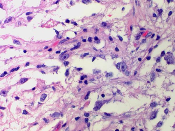 нейрогиля
