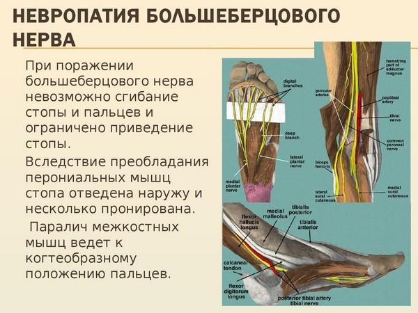 нейропатия болшебедрового нерва