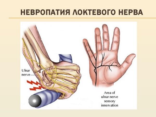 нейропатия локтевого нерва