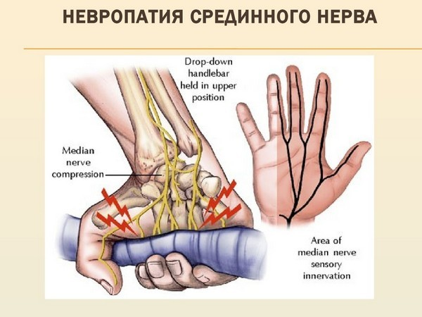 nejropatija-seredinnogo-nerva