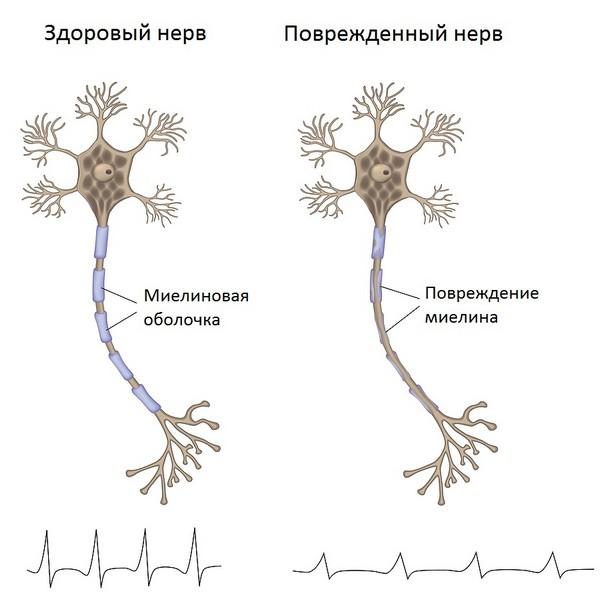 нервы