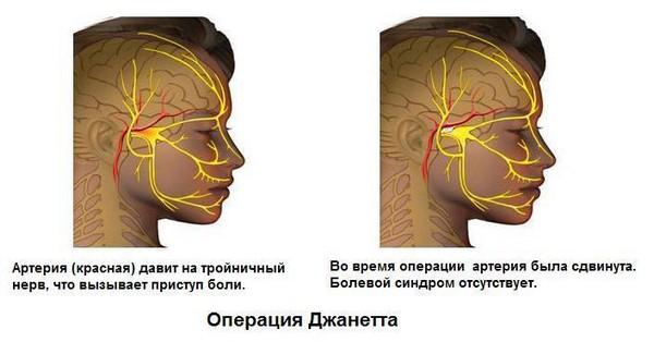 operatsiya-dzhanetta