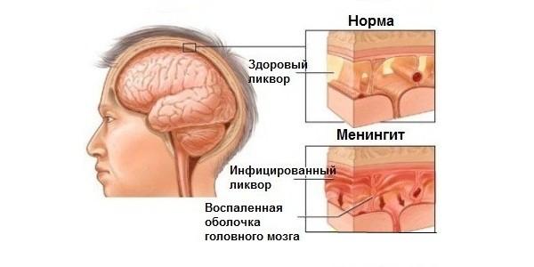 описание менингита