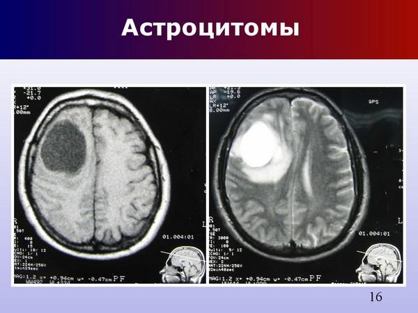 опухоли в мозгу