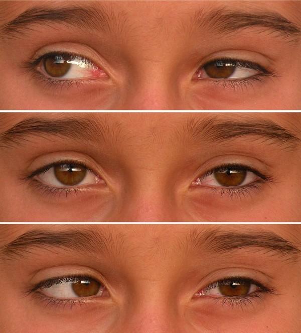 парез глаза