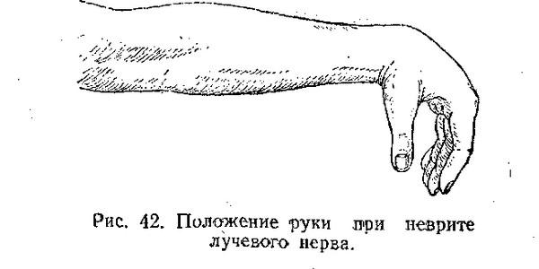 положение руки при неврите