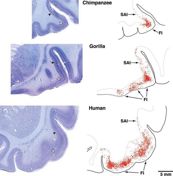 поражение нейронов