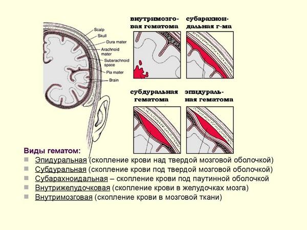 повреждение мозговой оболочки