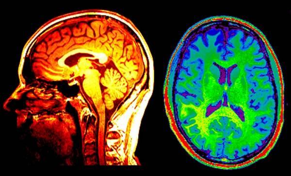 проверка активности мозга