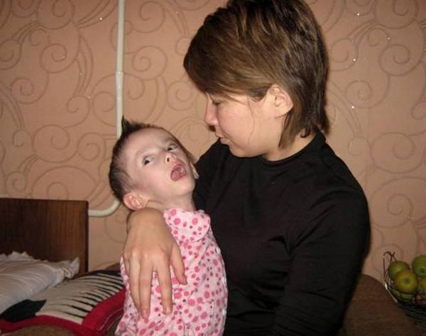 ребенок с менингоентсефалитом