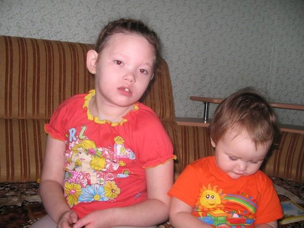 ребенок с синдромом веста