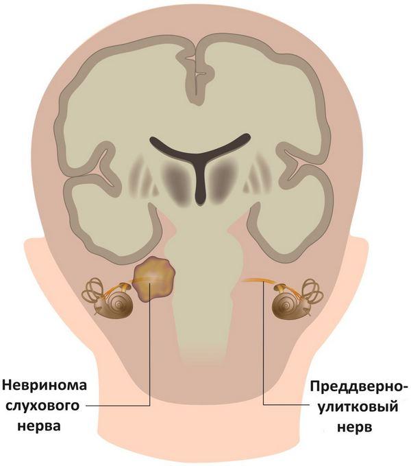 схема невриномы