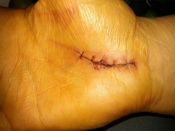 шов после операции