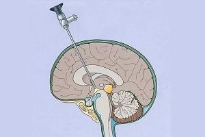 шунтирование головного мозга