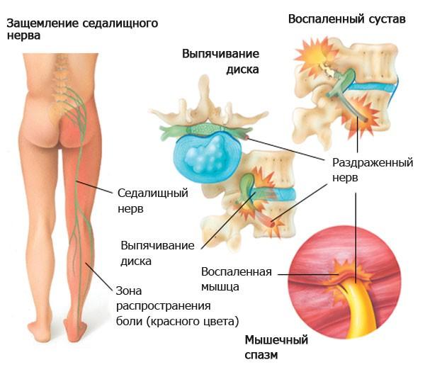 симптомы корешкового синдрома