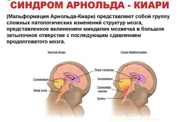 синдром арнольда киари