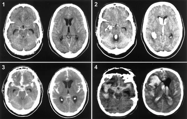 снимог головного мозга