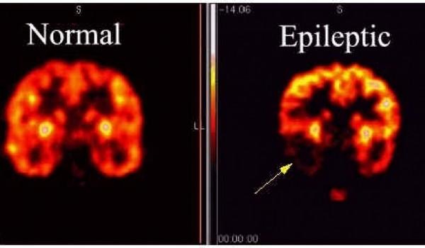 снимок мозга эпилептика
