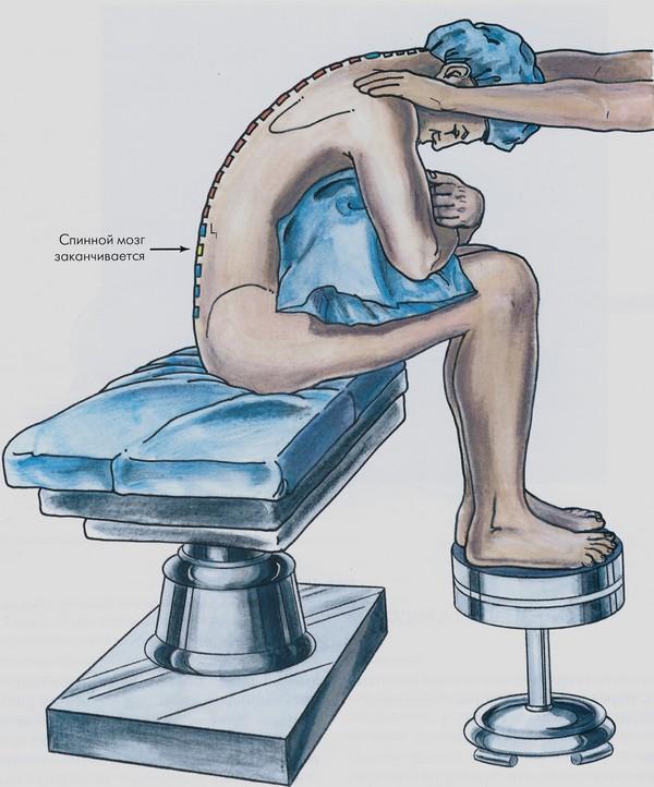 спинная анестезия